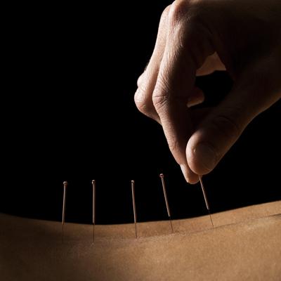 Acupuncture Centers of Florida